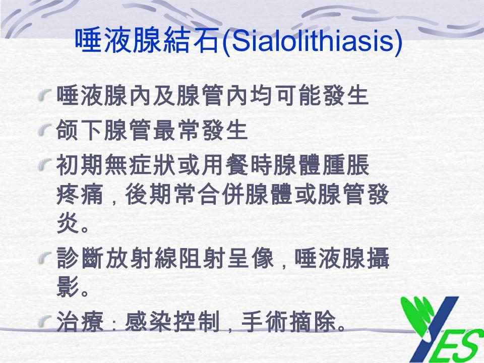 唾液腺結石(Sialolithiasis)