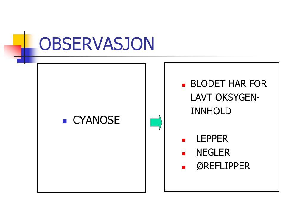 OBSERVASJON CYANOSE BLODET HAR FOR LAVT OKSYGEN- INNHOLD LEPPER NEGLER