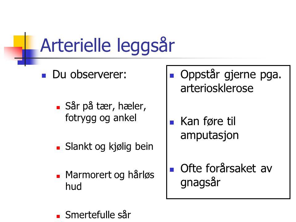 Arterielle leggsår Du observerer: Oppstår gjerne pga. arteriosklerose