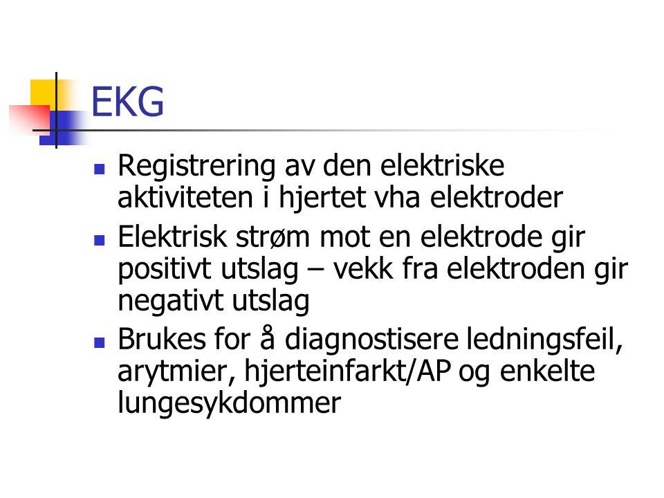 EKG Registrering av den elektriske aktiviteten i hjertet vha elektroder.
