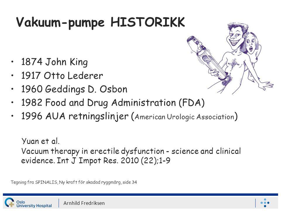 Vakuum-pumpe HISTORIKK