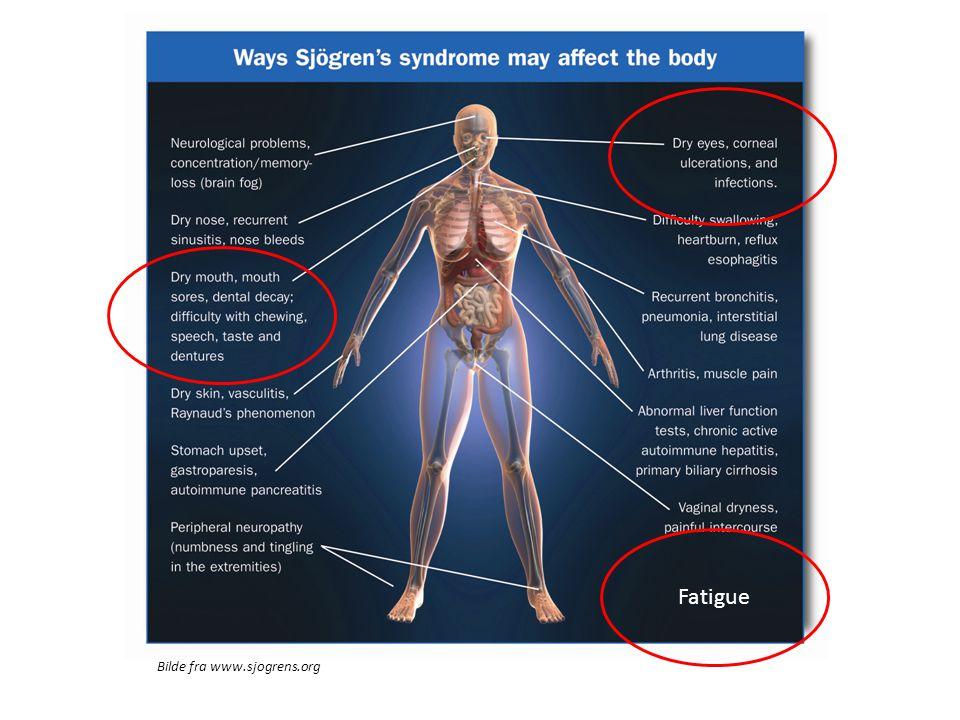 Fatigue Bilde fra www.sjogrens.org