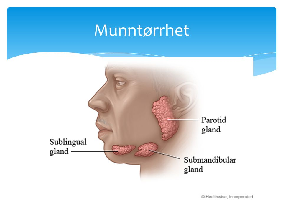 Munntørrhet The parotid glands were examinated in a longitudinal and cross-sectional plane. Submandibular glands in a longitudinal plane.