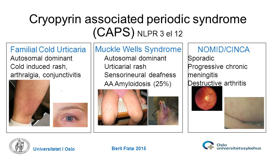 Cryopyrin associated periodic syndrome (CAPS) NLPR 3 el 12