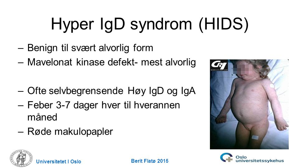 Hyper IgD syndrom (HIDS)