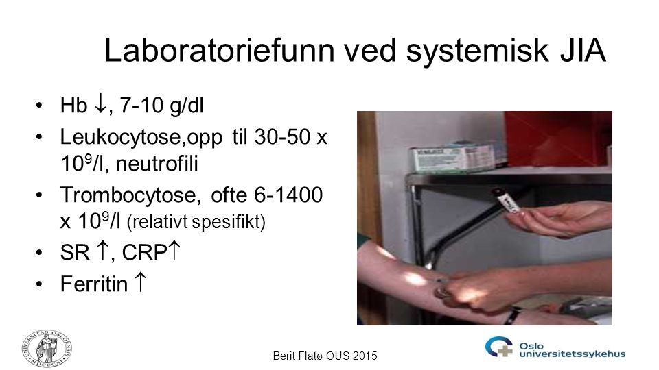 Laboratoriefunn ved systemisk JIA