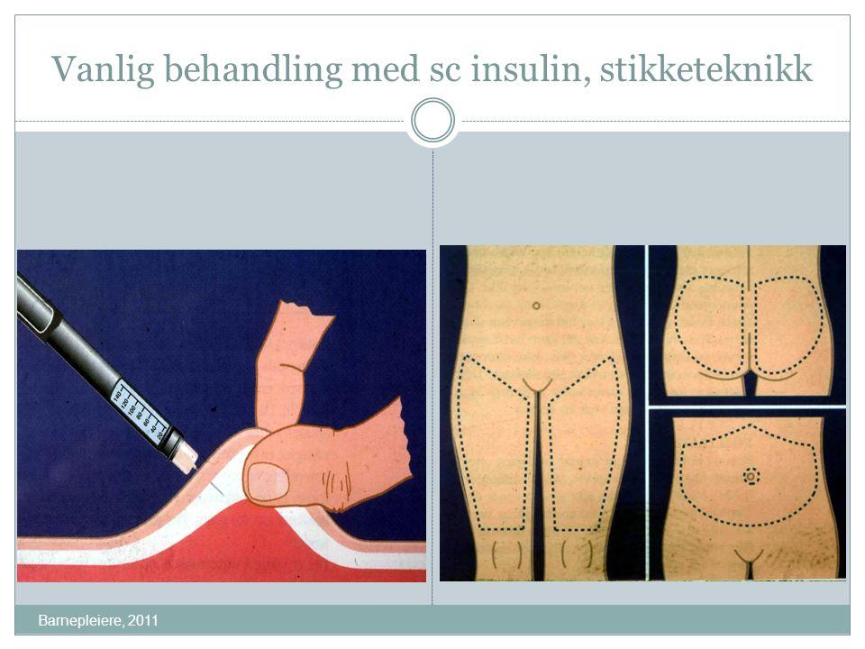Vanlig behandling med sc insulin, stikketeknikk