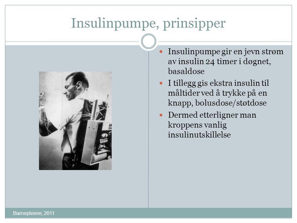 Insulinpumpe, prinsipper