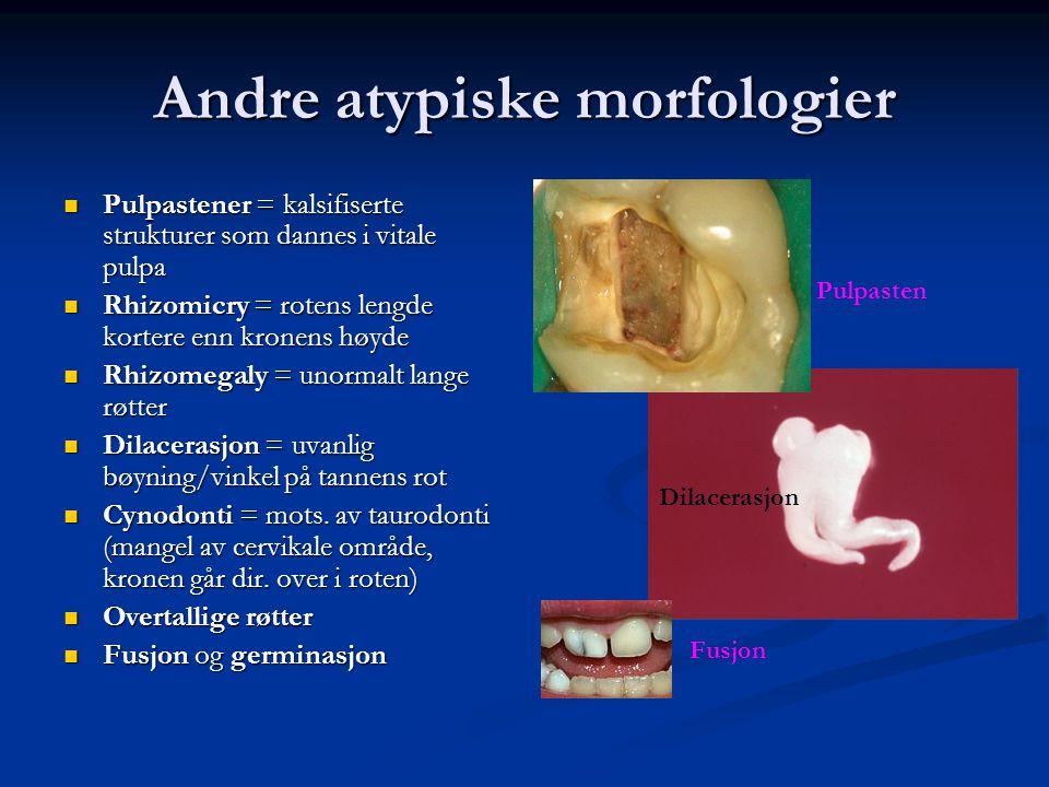 Andre atypiske morfologier