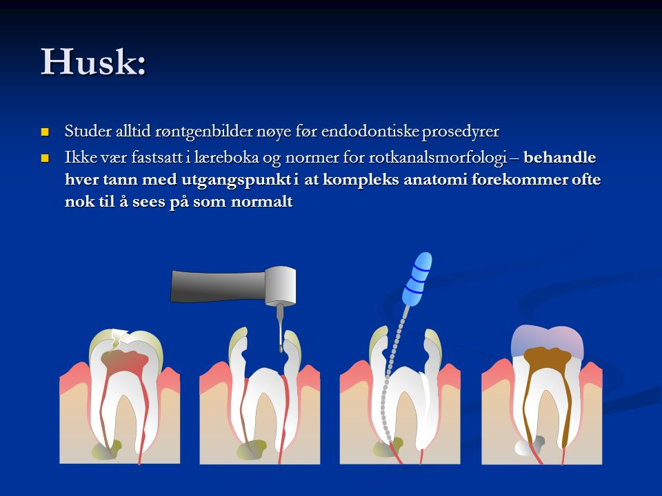 Husk: Studer alltid røntgenbilder nøye før endodontiske prosedyrer