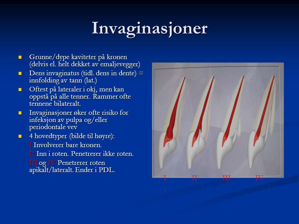 Invaginasjoner Grunne/dype kaviteter på kronen (delvis el. helt dekket av emaljevegger)