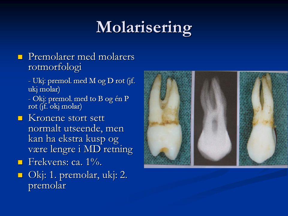 Molarisering Premolarer med molarers rotmorfologi