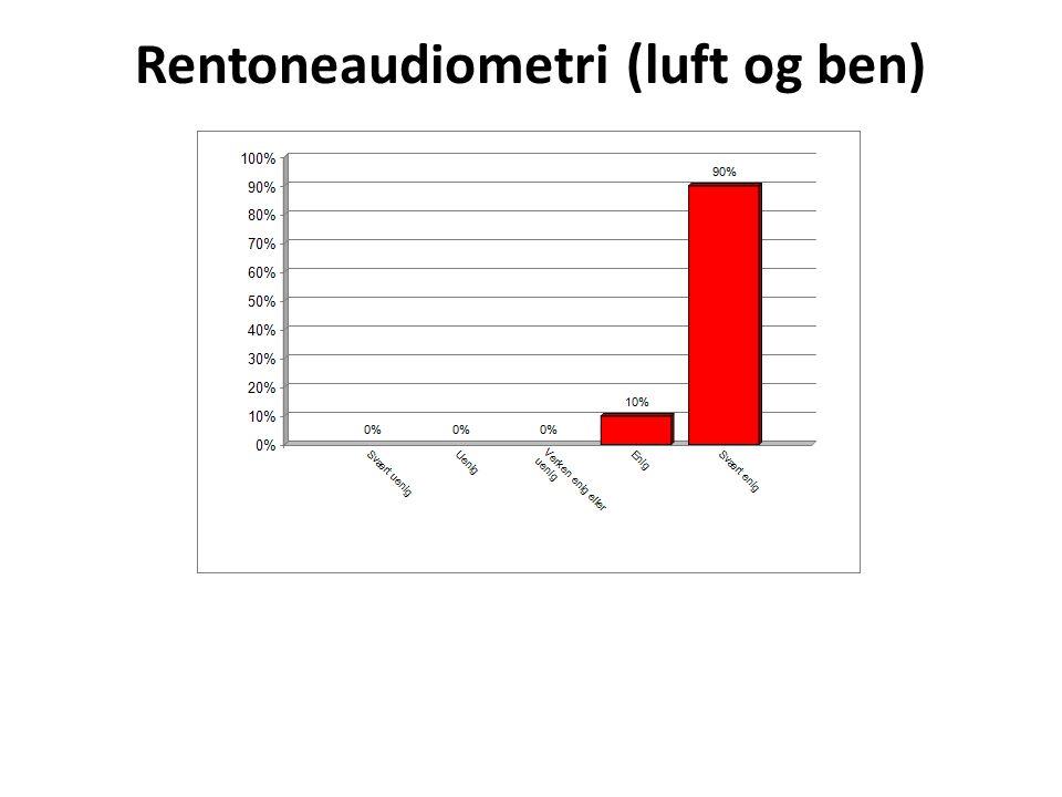 Rentoneaudiometri (luft og ben)