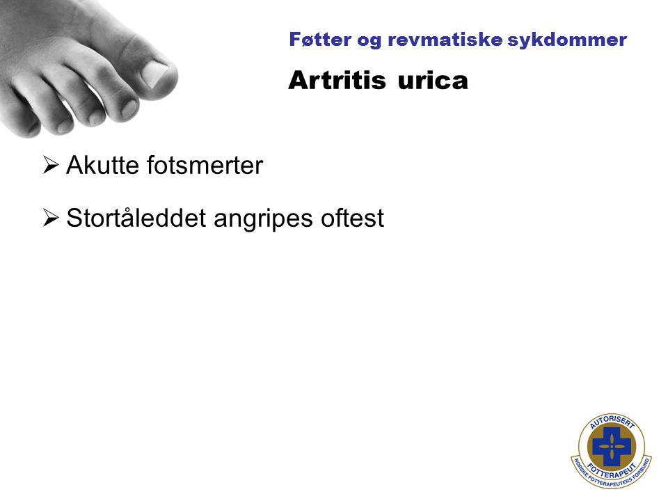 Føtter og revmatiske sykdommer