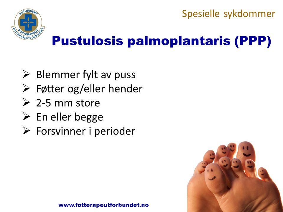 Pustulosis palmoplantaris (PPP)