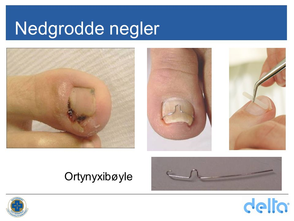 Nedgrodde negler Ortynyxibøyle