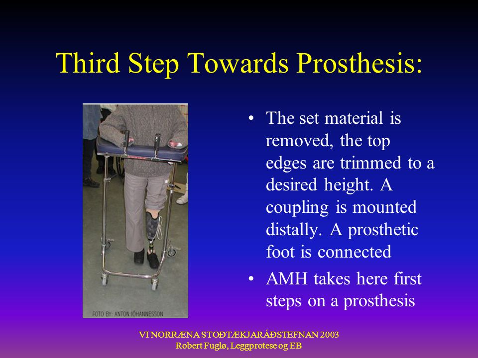 Third Step Towards Prosthesis: