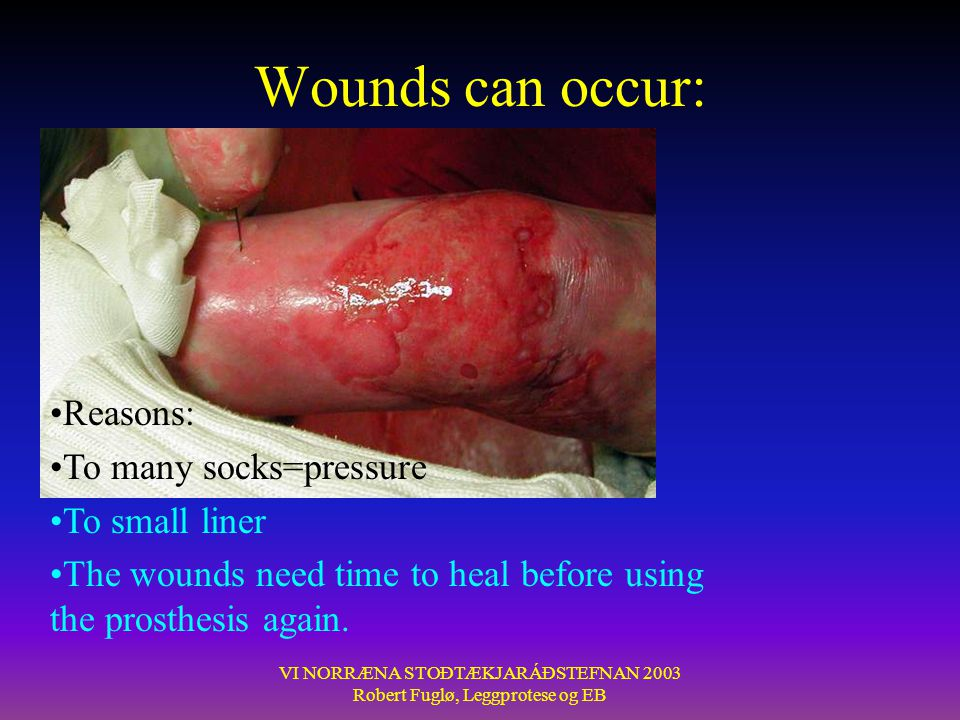 Wounds can occur: Reasons: To many socks=pressure To small liner
