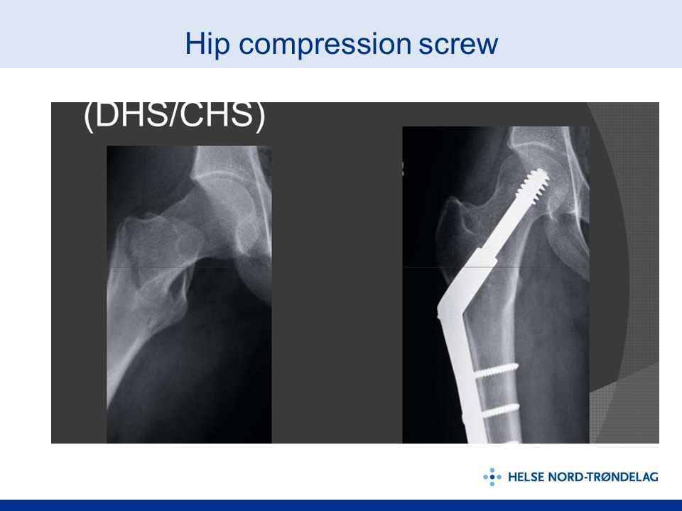 Hip compression screw