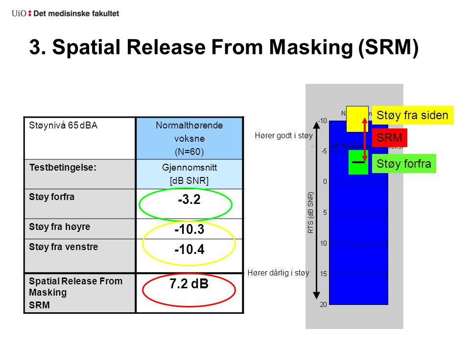 3. Spatial Release From Masking (SRM)