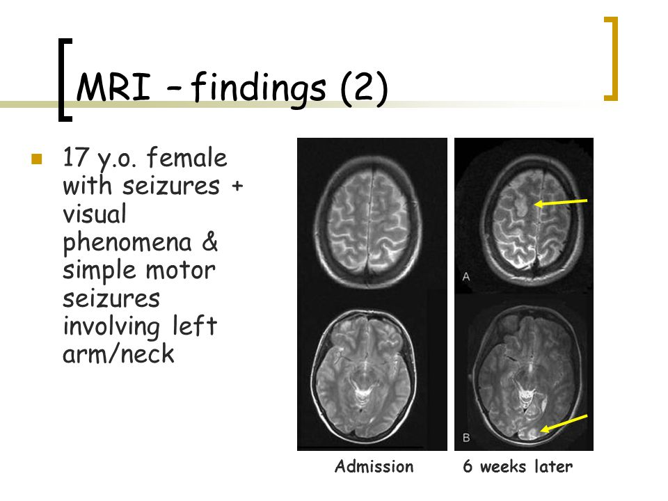 MRI – findings (2) 17 y.o. female with seizures + visual phenomena & simple motor seizures involving left arm/neck.