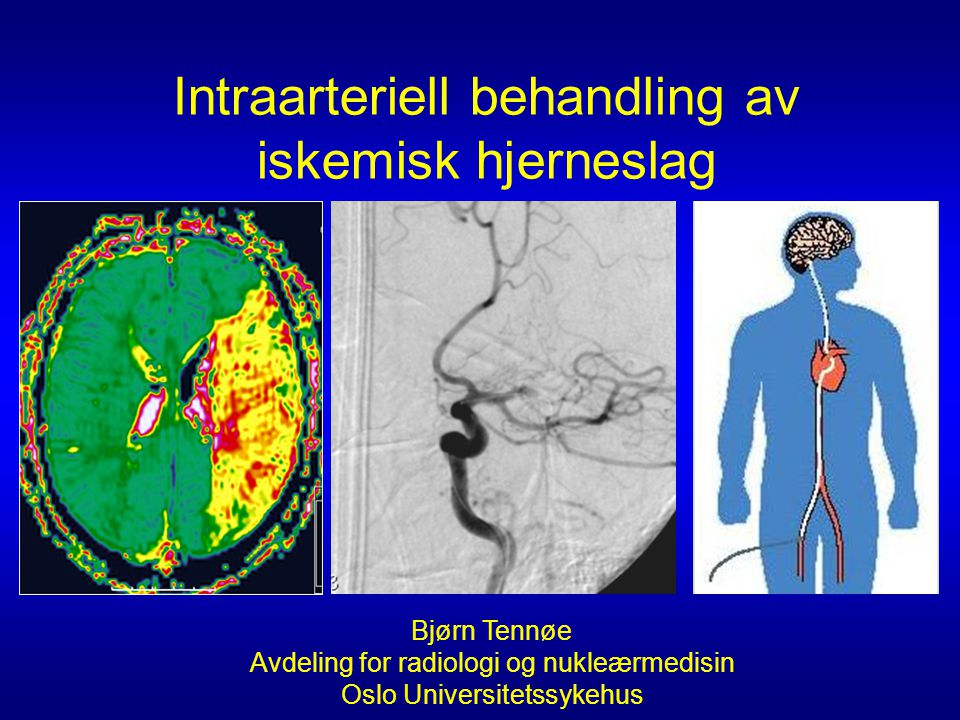Intraarteriell behandling av iskemisk hjerneslag