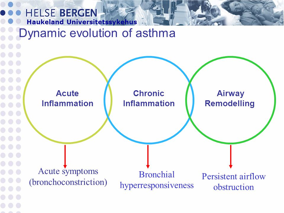 Dynamic evolution of asthma
