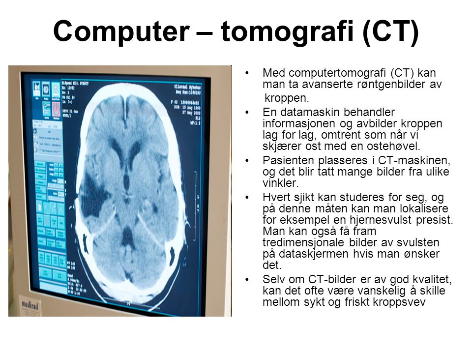 Computer – tomografi (CT)