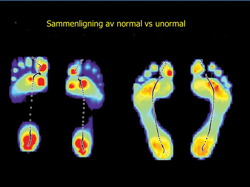 How does your GaitScan™ compare with the ideal